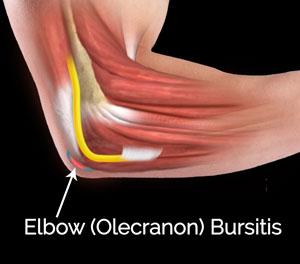 Elbow Olecranon Bursitis St Albans Elbow Surgery