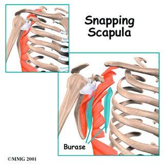 Snapping Scapula Stevenage Hitchin Rheumatoid Arthritis